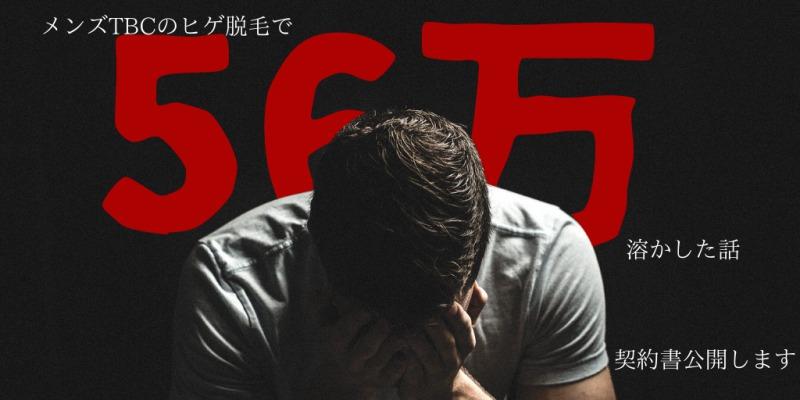 【56万円】メンズtbcヒゲ脱毛に1年通った体験を基に料金総額を解説
